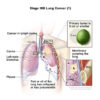 Outcomes of Hypofractional Tomotherapy in Patients with Stage III Nonsmall Cell Lung Cancer Who Are Not . . .