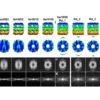 LoTToR: An Algorithm for Missing-Wedge Correction of the Low-Tilt Tomographic 3D Reconstruction of a Single-Molecule Structure